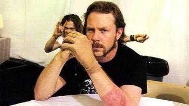 """Metallica publica una versión de """"The Unforgiven"""" de cuando James Hetfield """"se quemó vivo"""""""