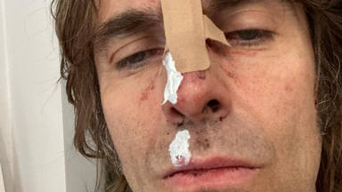 "Liam Gallagher (Oasis) ""se rompe la cara"" tras caerse de un helicóptero"